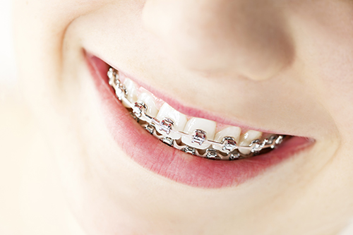 dental braces in Williamsport