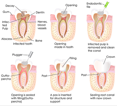Williamsport root canal